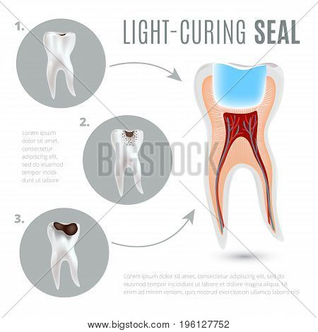Realistic medical poster with stages of tooth decay and light-curing seal. Dental caries. Vector illustration