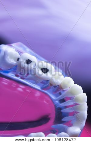 Dental Tooth Decay Problem