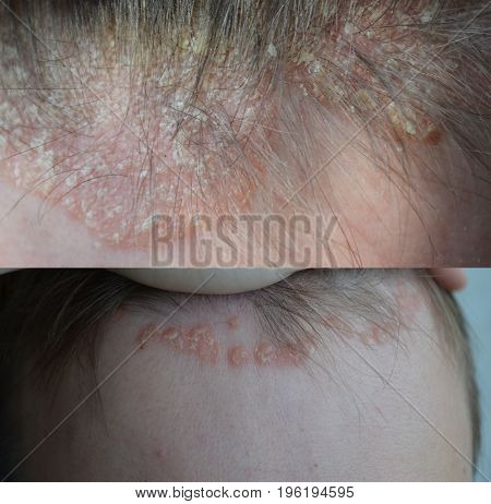 Psoriasis, eczema, dermatitis along the hair growth line, on the forehead, dermatological diseases, skin problems, before and after