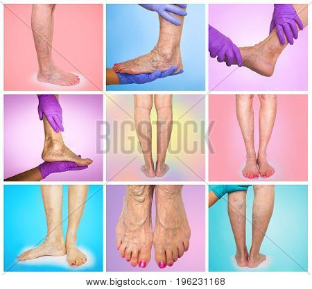 Lower limb vascular examination because suspect of venous insufficiency. The female legs on colored background. Collage