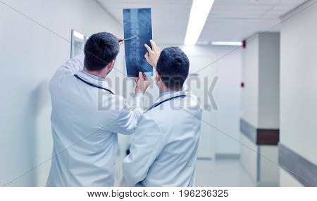 surgery, people, healthcare and medicine concept - medics with spine x-ray scan at hospital