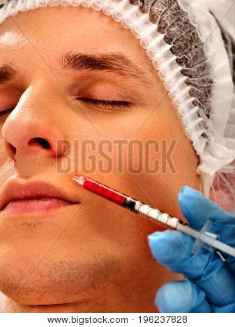 Filler injection for male forehead face. Plastic aesthetic facial surgery in beauty clinic. Cropped shot of doctor in medical gloves with syringe injects nasolabial fold drug.