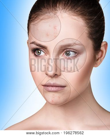Circles shows problem skin of young woman over blue background.