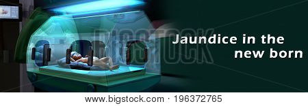 Jaundice is a yellow tint to a newborn's skin and the white part of the eyes. It is a sign that there's too much bilirubin in the baby's blood.