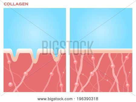 collagen in younger skin and aging vector version