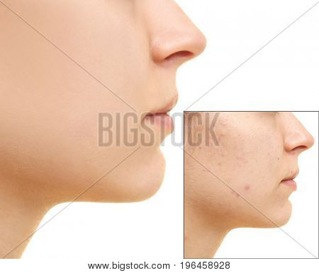 Young woman before and after acne treatment on white background, closeup. Skin care concept
