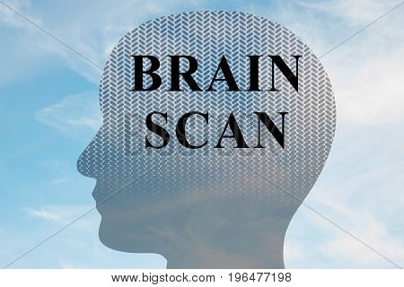 Brain Scan - Mental Concept