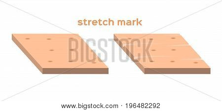 stretch marks . Skin care concept vector