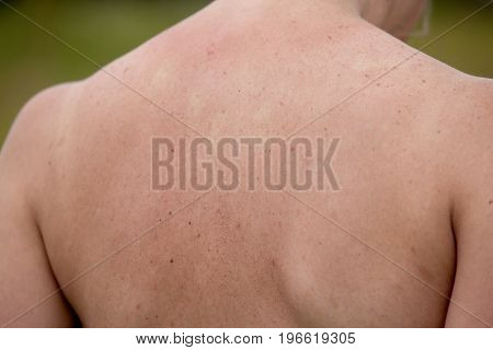 Women with skin pigmentation on back. Skin texture background