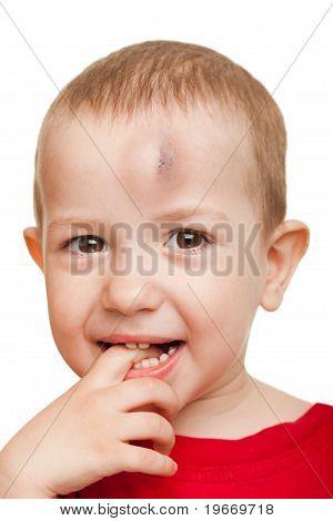 Wound Child
