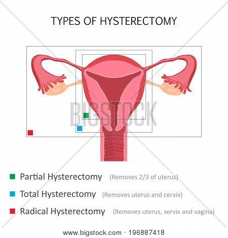 Types of Hysterectomy. Surgical removal of the uterus. Vector illustration design