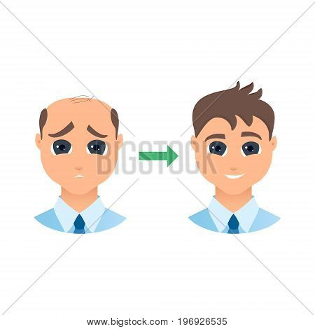 Man with alopecia before and after hair treatment and transplantation. Male hair loss set. Before and after make over series of a balding gentleman. Beauty concept design. Isolated vector illustration