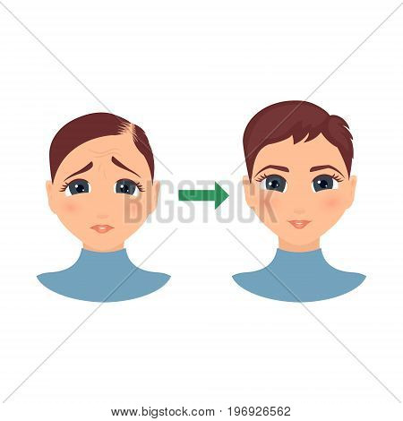 Woman with alopecia before and after hair treatment and transplantation. Female hair loss set.Before and after make over series of a balding lady. Beauty concept design. Isolated vector illustration.