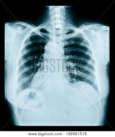 medical radiograph of thorax. ray lungs chest