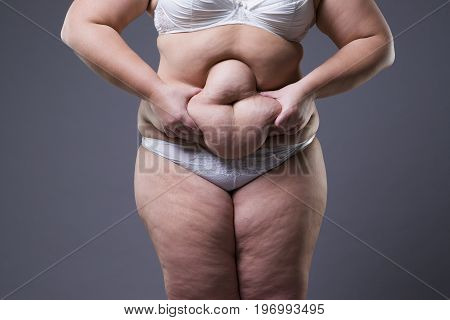 Overweight woman with fat legs obesity female body on gray background