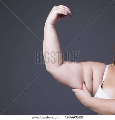 Cellulite on a woman's hand gray background