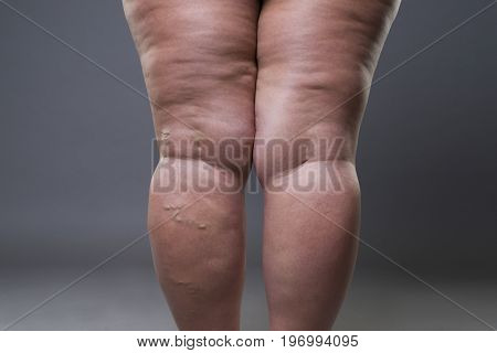 Varicose veins closeup fat female cellulite legs on a gray background