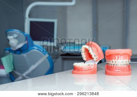 Orthodontic Model And Dentist Tool - Demonstration Teeth Model Of Varities Of Orthodontic Bracket Or