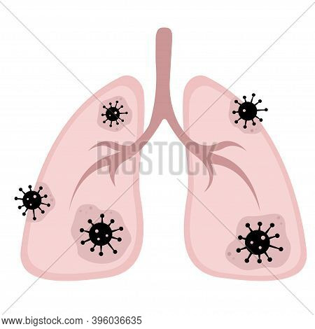 Vector Illustration Of The Lungs Affected By Coronavirus, Infestation Covid-19