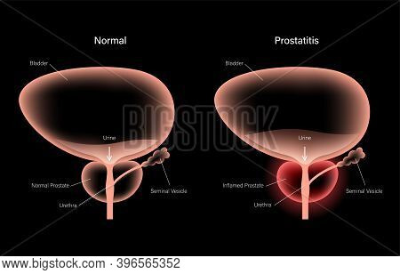 Prostatitis Swelling And Inflammation Of Prostate Gland. Normal And Infected Bladder 3d Realistic Ve
