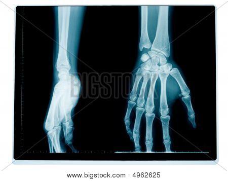 Hand And Wrist Radiography