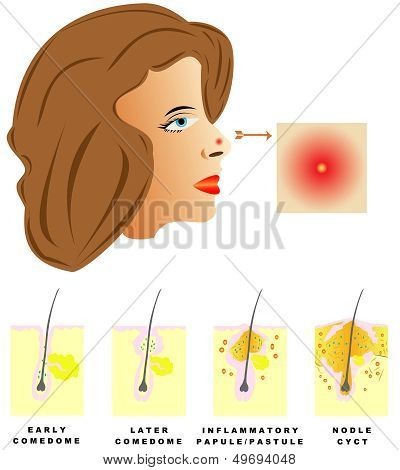 Acne. Acne is divided into four types: Comedones, Papules, Pustules, Nodules and cysts on white background. poster
