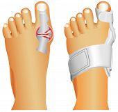 Big toe injury. Support for foot or big toe injury. Hallufix Hallux Valgus Splint. Bunion, Hallux valgus, popularly known as Bunion. poster