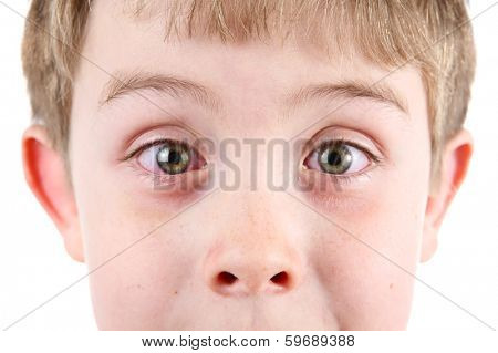 Boy with conjunctivitis poster