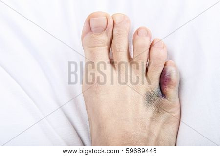 Foot with broken toe on sheet