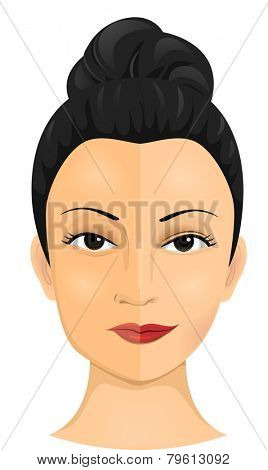 Illustration of a Woman Who Had Undergone Several Cosmetic Procedures