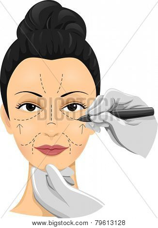 Illustration of a Girl Having Incision Lines Drawn on Her Face