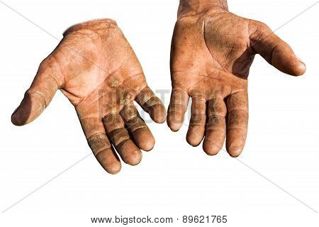 Worker is showing his chapped hands dirty and injured palms against white background. poster