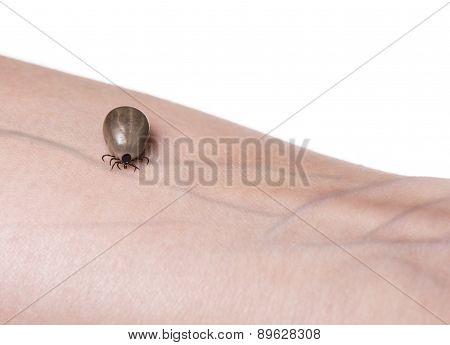 Tick On A Skin