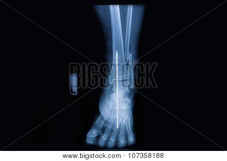 Fracture Of The Lower Part Of The Fibula, Front View X-ray