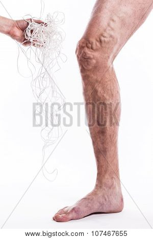 human leg with blocked veins thrombosis phlebitis and standing on a white background with depth of field Photo poster