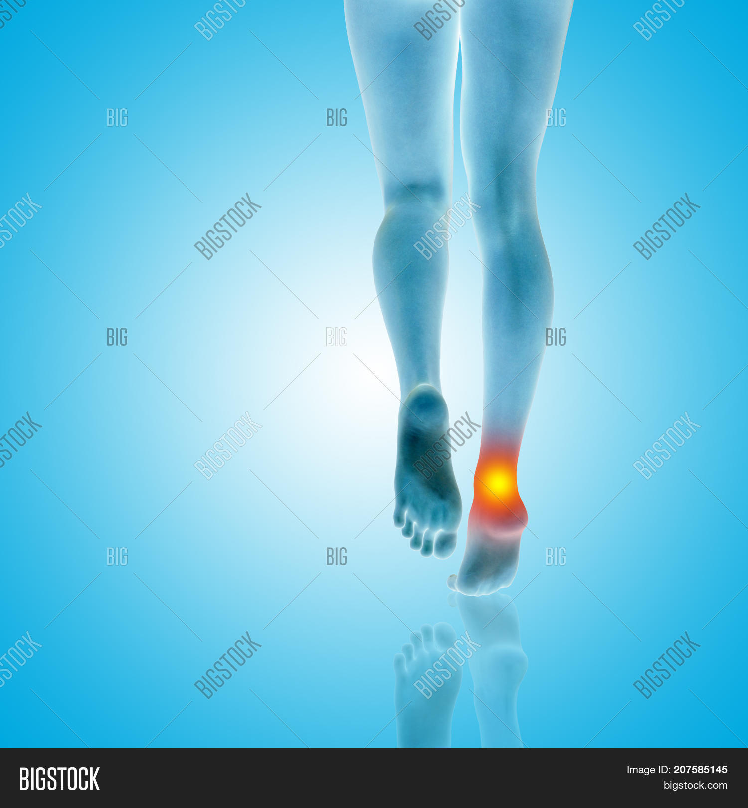 ef9d62092ad Conceptual beautiful woman or girl legs and feet with a hurt ankle pain or  ache closeup