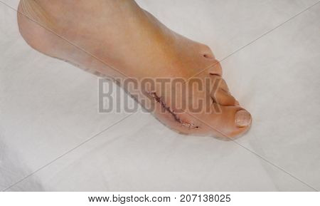 Patient after the bunion operation of Hallux Valgus