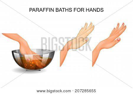 vector illustration of a paraffin baths for hands