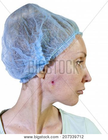 photo from a series: Cosmetology. Complications. wound after a fistula curettage on a cheek after removal of badly established non-absorbable thread
