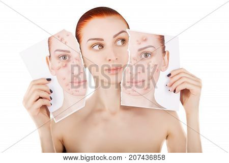 acne problems red haired woman portrait on white