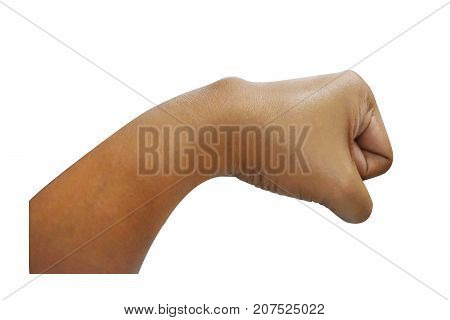Asian women age thirty Sick with disease The cyst at the wrist isolated on white background with clipping path. Carpal ganglion cyst in Medical name.