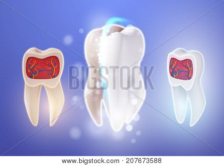 Illustration of 3D Realistic Vector Teeth Cleaning Process. Vector Tooth Cleaning Treatment. Healthcare Stomatology Procedure