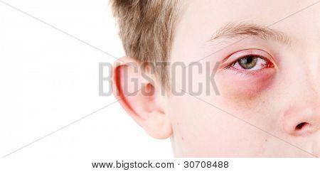 Boy with an injured eye