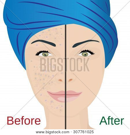Acne Pustules On A Woman Face And A Treatment Result Before And After. Vector Illustration. Cosmetol