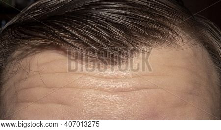 A Man\'s Forehead Is Furrowed.wrinkles On The Forehead Background Photo.the Forehead Is Lined And Cr