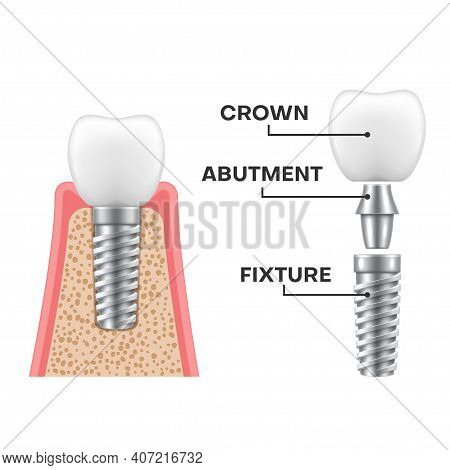 Dental Implant Structure Realistic Schematic. Implantation Sequence. Fixture, Abutment, Crown.