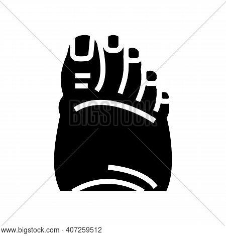 Fatty Foot Edema Glyph Icon Vector. Fatty Foot Edema Sign. Isolated Contour Symbol Black Illustratio