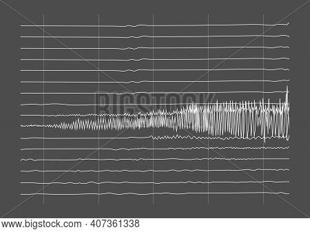 Vector Illustration Of Ictal Eeg Recording During Seizure. Seizure Waves Showing High Amplitudes And