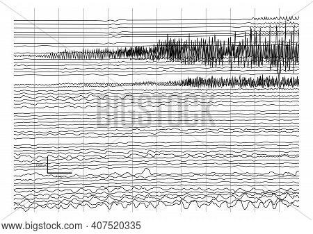 Vector Illustration Of Ictal Eeg Recording During Seizure. Seizure Waves Showing Propagation Of High