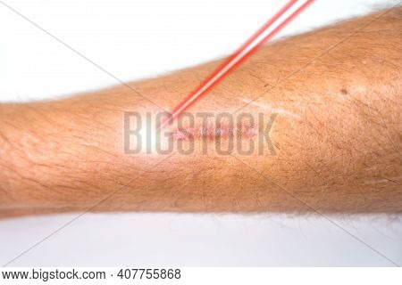 Man Leg And Laser Beam During Scar Removal Treatment. Laser Resurfacing Of Scars , Laser Surgery. Sk